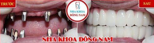 cấy ghép implant 2 hàm