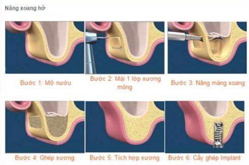 vì sao cần phải nâng xoang khi cấy ghép implant 3