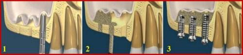 Vì sao phải nâng xoang khi cấy ghép Implant 3
