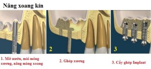 vì sao cần phải nâng xoang khi cấy ghép implant 4