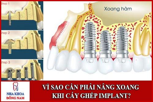 Vì sao phải nâng xoang khi cấy ghép Implant
