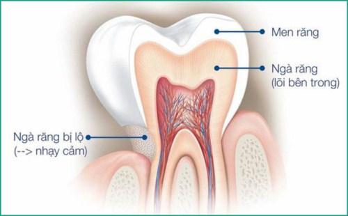 Bột tẩy trắng răng eucryl là gì có nên sử dụng không3