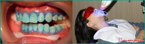 Bột tẩy trắng răng eucryl là gì có nên sử dụng không 6