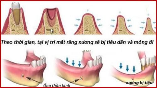 Cách ngăn ngừa tiêu xương hàm1