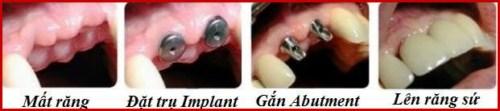 Cách ngăn ngừa tiêu xương hàm3