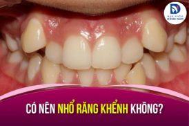 Có nên nhổ răng khểnh không? Giải đáp từ Nha Sĩ