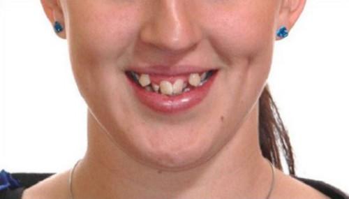 có nên nhổ răng khểnh không 1