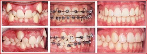 Để có hàm răng đẹp như Angela baby 11