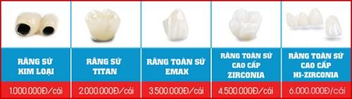 bảng giá răng sứ tại nha khoa Đông Nam
