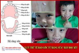 Lưu trữ tế bào gốc từ răng sữa