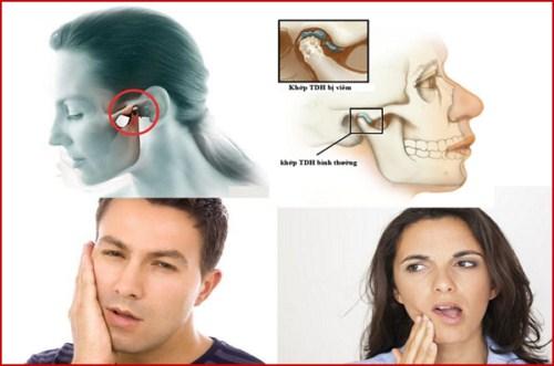 Ngủ Ngáy thường xuyên do bị mất răng bạn có biết 3