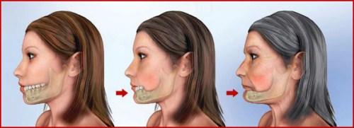Ngủ Ngáy thường xuyên do bị mất răng bạn có biết 5
