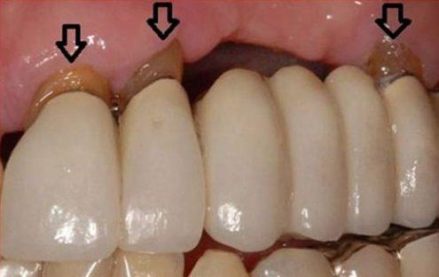Trồng răng cấm bao nhiêu tiền 10