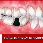 Trồng răng cấm bao nhiêu tiền