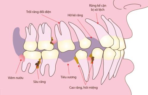 răng bị xô lệch về vùng mất răng