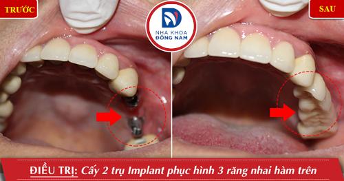 trồng răng cấm hàm trên