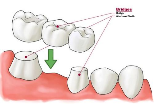 mô phỏng trồng răng cấm bằng cầu sứ