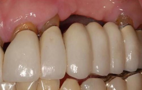 hiện tượng tiêu xương dưới cầu răng sứ