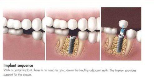 Trồng răng cấm bao nhiêu tiền 3