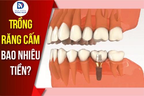 Trồng răng CẤM bao nhiêu tiền?