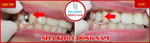 Trồng răng cấm bao nhiêu tiền 6