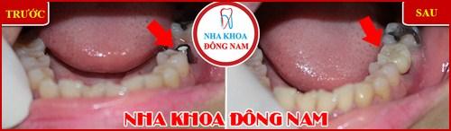 Trồng răng cấm bao nhiêu tiền 7