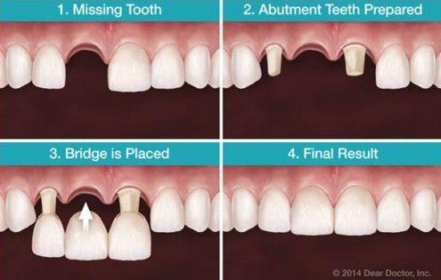 Trồng răng cấm bao nhiêu tiền 9