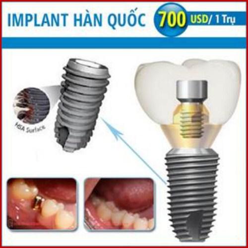 Ưu nhược điểm của cấy ghép implant là gì 11