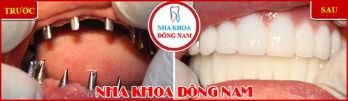 ưu nhược điểm của trồng răng implant 25