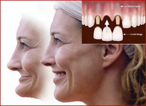 Ưu nhược điểm của cấy ghép implant là gì 4
