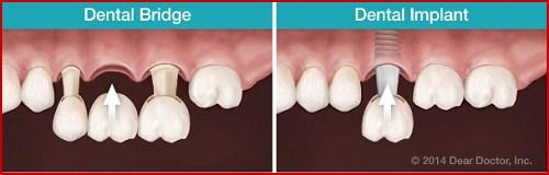 ưu nhược điểm của trồng răng implant 5