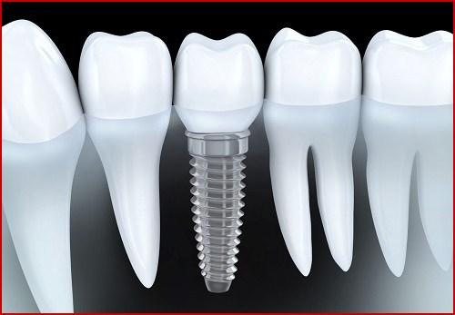 ưu nhược điểm của trồng răng implant 8
