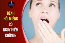 Bệnh hôi miệng có nguy hiểm không
