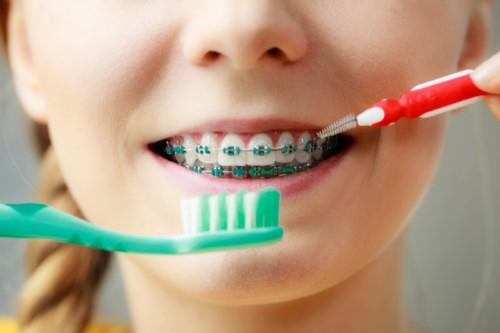 vệ sinh răng niềng