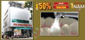 giảm 50% trám răng kỷ niệm 1 năm ra mắt cơ lê hồng phong