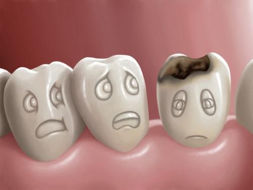 đánh răng thường xuyên vẫn hôi miệng