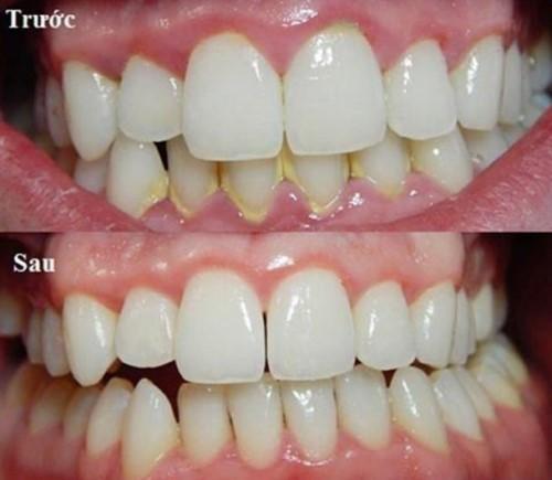 cạo vôi răng chữa hôi miệng