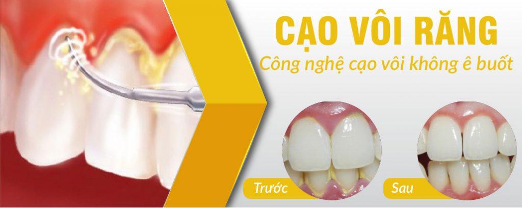 Cạo vôi răng nha khoa Đông Nam