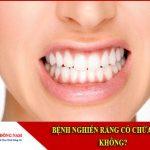 bệnh nghiến răng có chữa được không