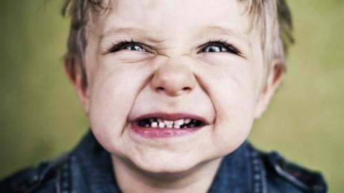 bệnh nghiến răng ở trẻ