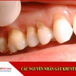 các nguyên nhân gây khuyết cổ răng