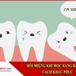hôi miệng khi mọc răng khôn và cách khắc phục
