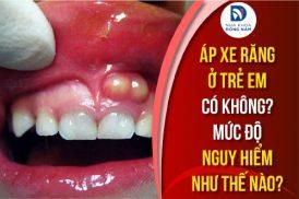 áp xe răng ở trẻ em có không mức độ nguy hiểm như thế nào