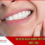bị áp xe răng khôn nên nhổ hay điều trị
