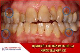 bị khuyết cổ chân răng để lại những hậu quả gì