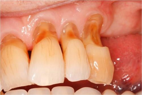 khuyết cổ chân răng