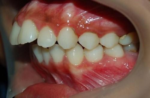 viêm nha chu niềng răng được không