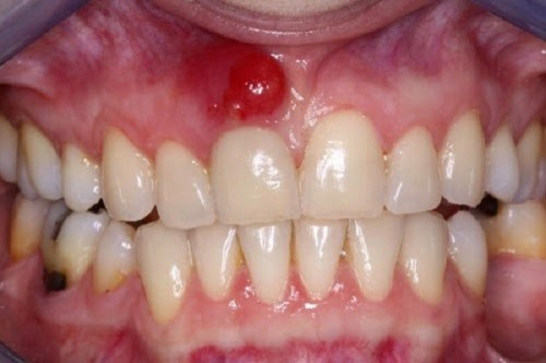 biểu hiện áp xe răng