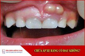 chữa áp xe răng có đau không