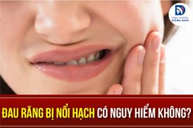đau răng bị nổi hạch có nguy hiểm không
